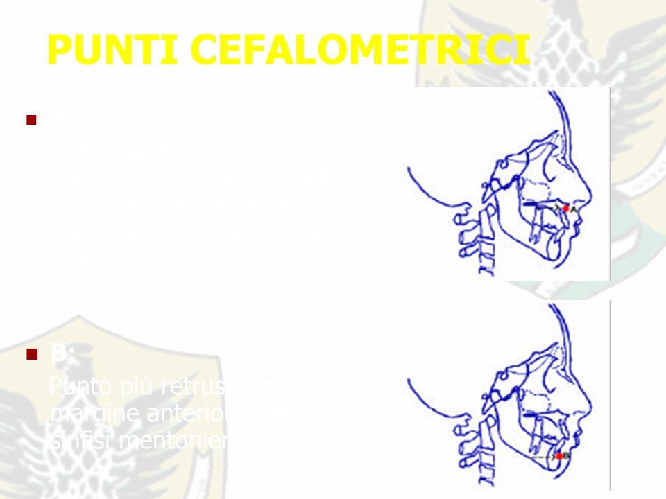 PUNTI CEFALOMETRICI A: Punto più posteriore (rientrante o interno) della concavità anteriore del mascellare tra spina nasale anteriore e processi alveolari.