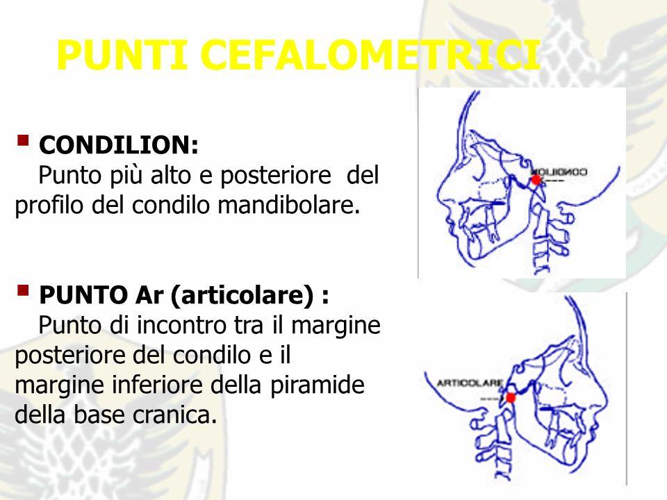 PUNTI CEFALOMETRICI CONDILION: Punto più alto e posteriore del profilo del condilo mandibolare.