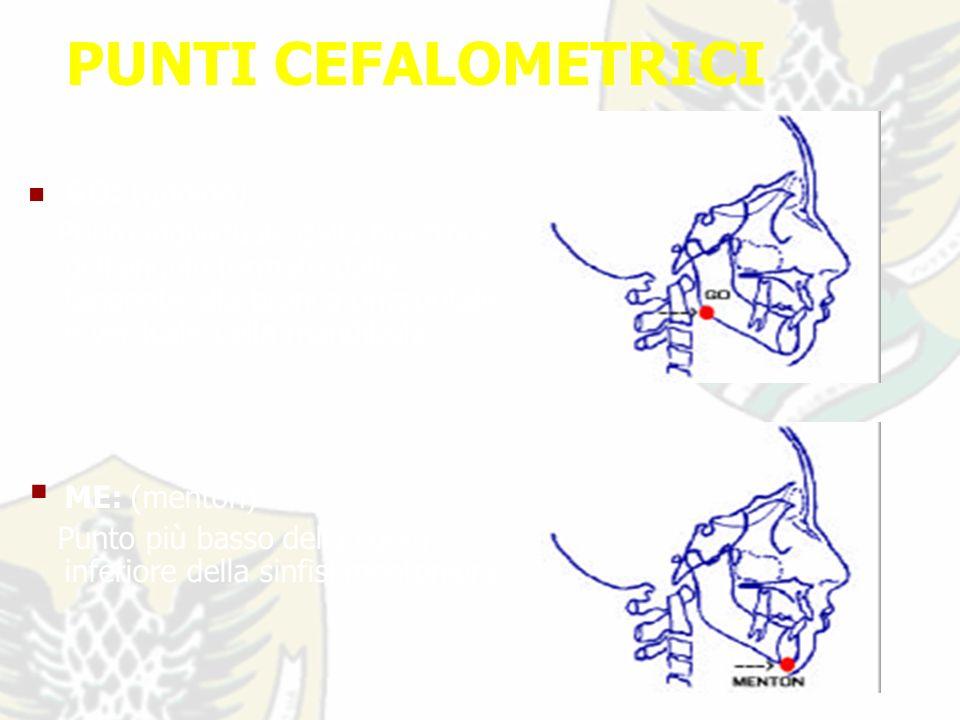 PUNTI CEFALOMETRICI GO: (gonion) Punto individuale dalla bisettrice dell angolo formato dalla tangente alla branca orizzontale e verticale della mandibola.