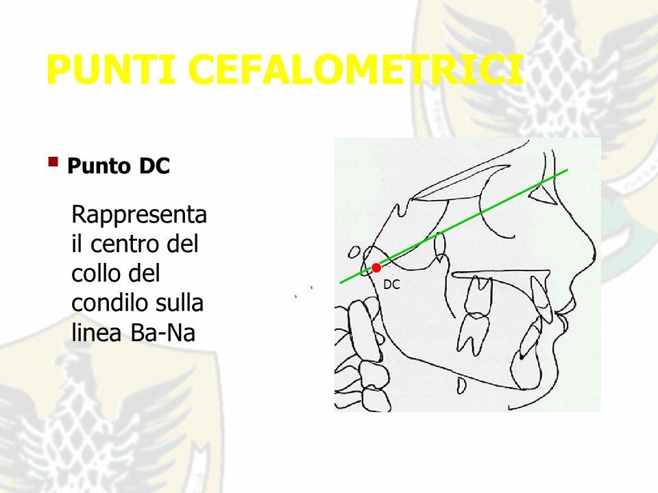 PUNTI CEFALOMETRICI Punto DC -- Rappresenta il centro del collo del condilo sulla linea Ba-Na DC