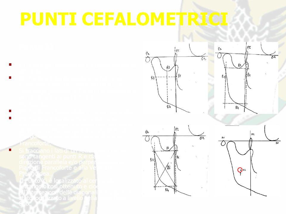 PUNTI CEFALOMETRICI Punto Xi R1-Punto più retrostante sul bordo anteriore del ramo; R2-Punto sul bordo posteriore del ramo lungo una linea che, partendo da R1, si mantenga parallela al Piano di Francoforte e perpendicolare alla Verticale Pterigoidea; R3-Punto più basso della incisura sigmoidea; R4-Punto sul bordo inferiore del ramo mandibolare lungo una linea che, partendo da R3, si mantenga parallela alla Verticale Ptergoidea e perpendicolare al Piano di Francoforte.