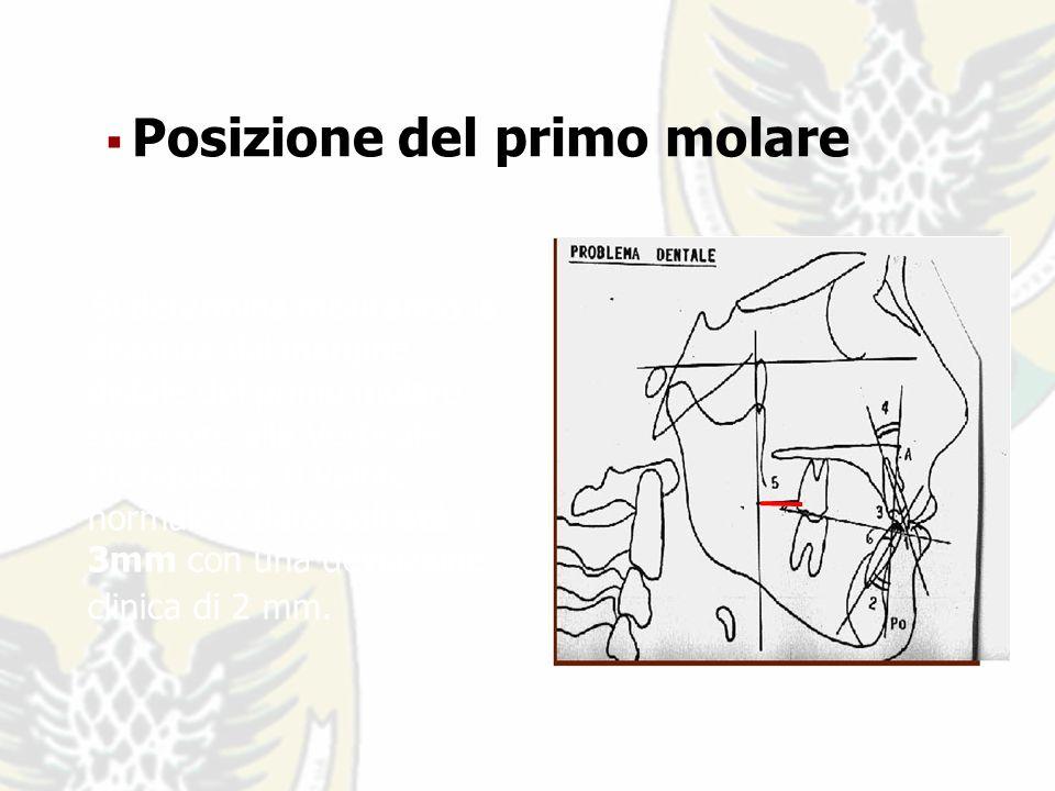 Si determina misurando la distanza dal margine distale del primo molare superiore alla Verticale Pterigoidea.