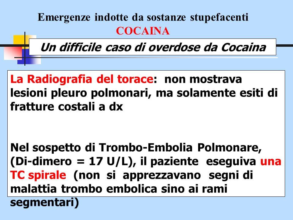 Emergenze indotte da sostanze stupefacenti COCAINA Un difficile caso di overdose da Cocaina La Radiografia del torace: non mostrava lesioni pleuro pol