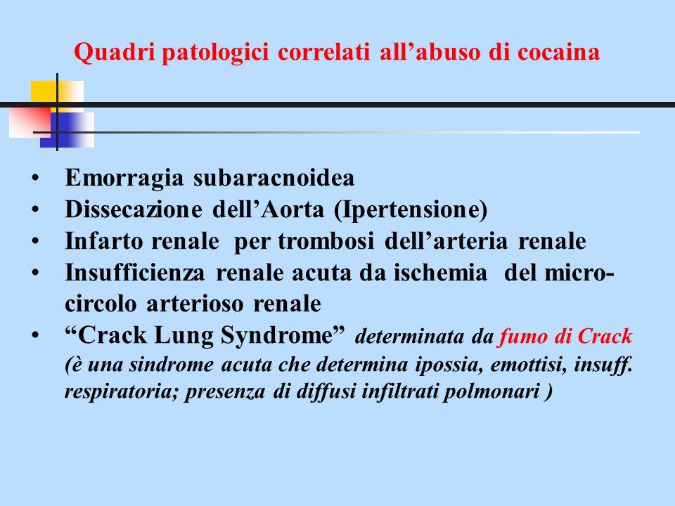 Quadri patologici correlati allabuso di cocaina Emorragia subaracnoidea Dissecazione dellAorta (Ipertensione) Infarto renale per trombosi dellarteria