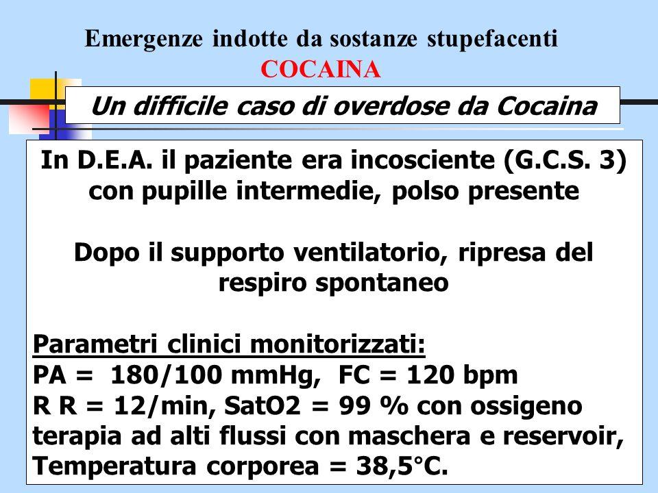 Emergenze indotte da sostanze stupefacenti COCAINA Un difficile caso di overdose da Cocaina LECG evidenziava una tachicardia sinusale ed tratto ST sopraslivellato di 1- 1,5mm in D1 – D2 AVL, e da V4 a V6 Posizionamento di CVC, per totale indisponibilità di accessi venosi periferici Somministrato Naloxone 2 mg + 2 mg ev parziale e momentanea ripresa di coscienza movimenti afinalistici in estensione rigida seguivano brividi scuotenti e stato di agitazione psicomotoria