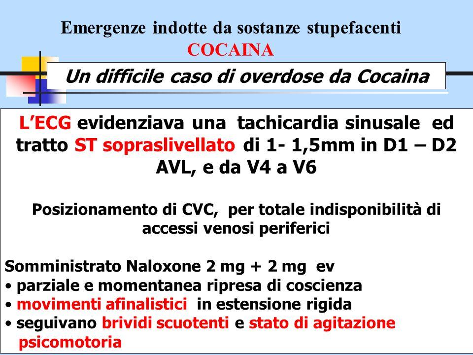 Emergenze indotte da sostanze stupefacenti COCAINA Un difficile caso di overdose da Cocaina LECG evidenziava una tachicardia sinusale ed tratto ST sop