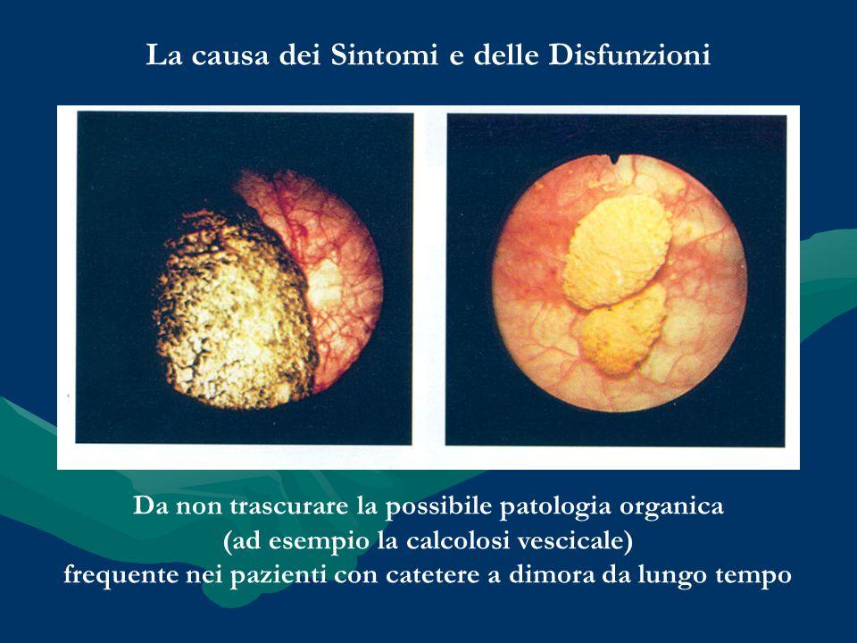 La causa dei Sintomi e delle Disfunzioni Da non trascurare la possibile patologia organica (ad esempio la calcolosi vescicale) frequente nei pazienti