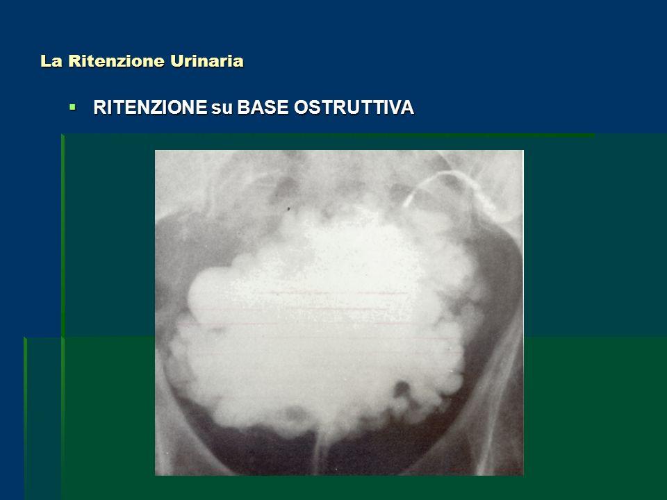 La Ritenzione Urinaria RITENZIONE su BASE OSTRUTTIVA RITENZIONE su BASE OSTRUTTIVA