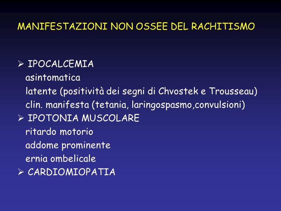 MANIFESTAZIONI NON OSSEE DEL RACHITISMO IPOCALCEMIA asintomatica latente (positività dei segni di Chvostek e Trousseau) clin. manifesta (tetania, lari