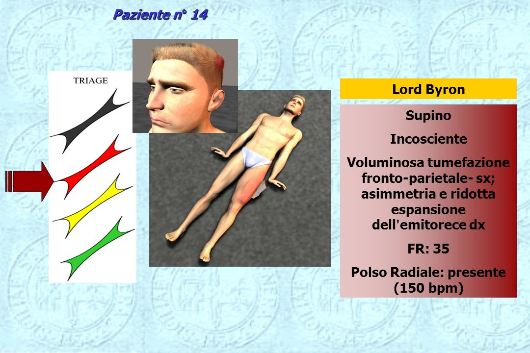 Supino Incosciente Voluminosa tumefazione fronto-parietale- sx; asimmetria e ridotta espansione dellemitorece dx FR: 35 Polso Radiale: presente (150 b