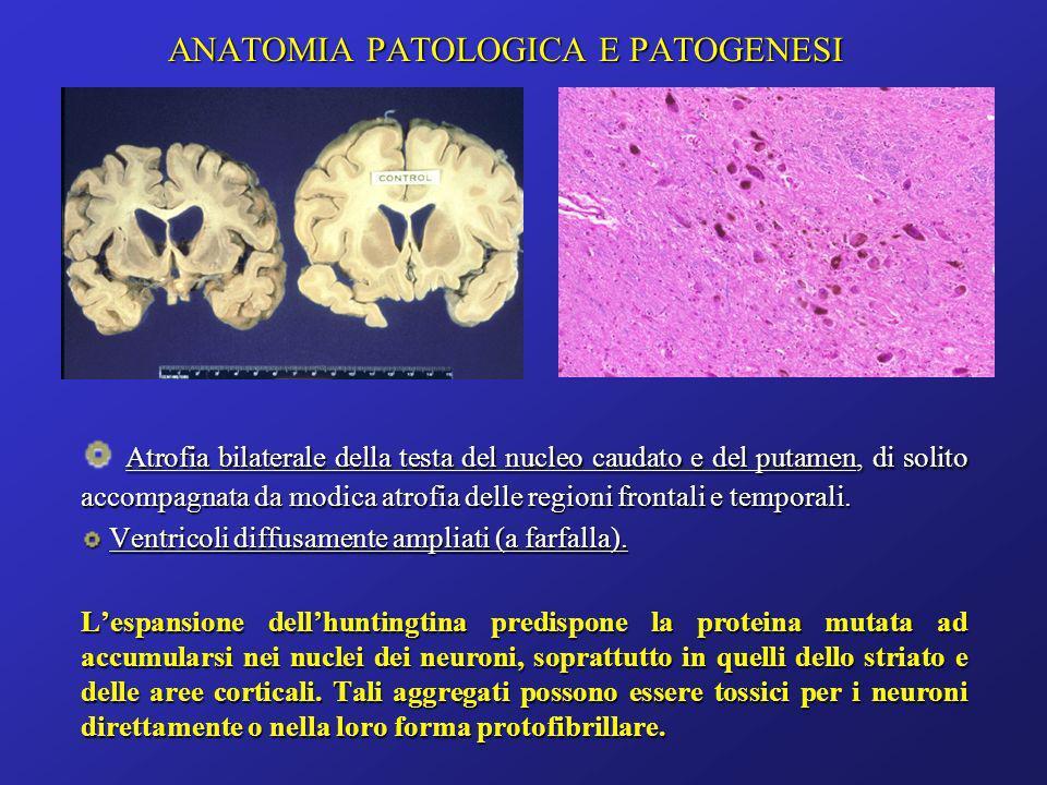 ANATOMIA PATOLOGICA E PATOGENESI Atrofia bilaterale della testa del nucleo caudato e del putamen, di solito accompagnata da modica atrofia delle regio