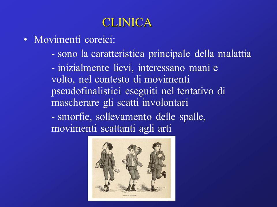Movimenti coreici: - sono la caratteristica principale della malattia - inizialmente lievi, interessano mani e volto, nel contesto di movimenti pseudo