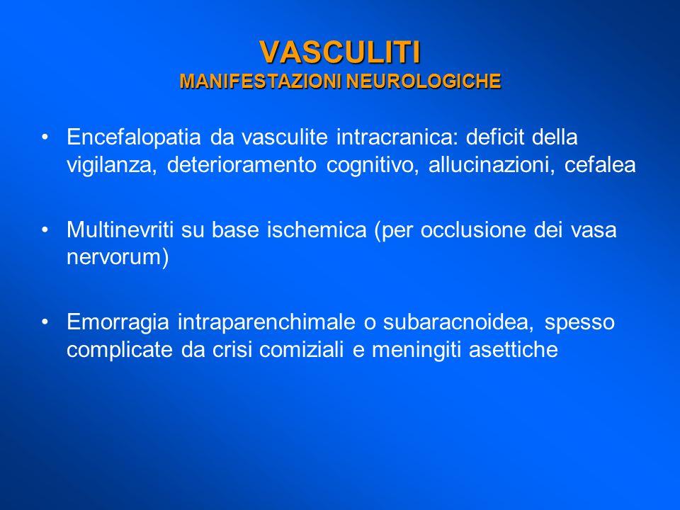 Encefalopatia da vasculite intracranica: deficit della vigilanza, deterioramento cognitivo, allucinazioni, cefalea Multinevriti su base ischemica (per
