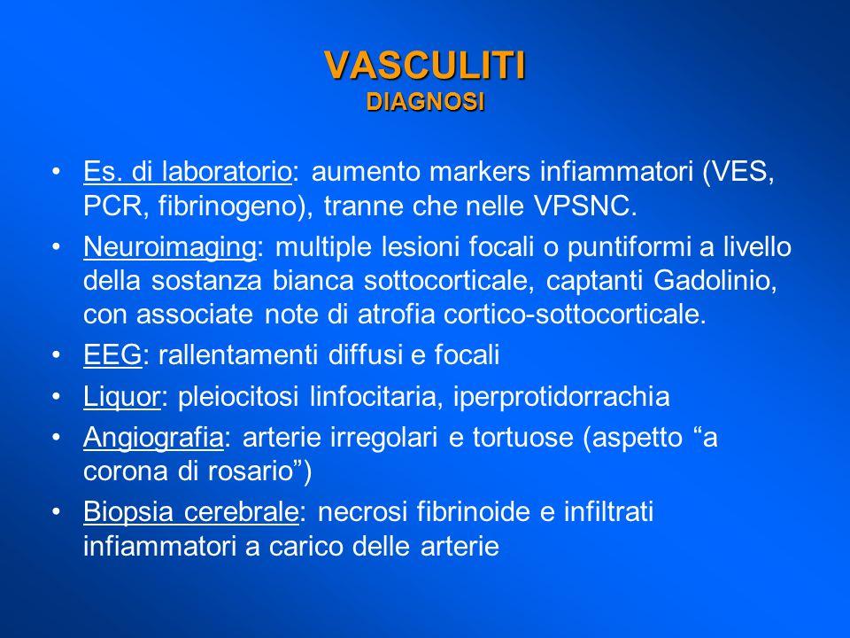 Es. di laboratorio: aumento markers infiammatori (VES, PCR, fibrinogeno), tranne che nelle VPSNC. Neuroimaging: multiple lesioni focali o puntiformi a