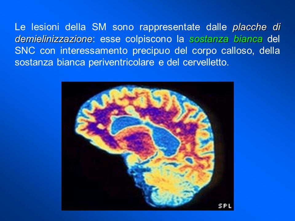 placche di demielinizzazionesostanza bianca Le lesioni della SM sono rappresentate dalle placche di demielinizzazione: esse colpiscono la sostanza bia
