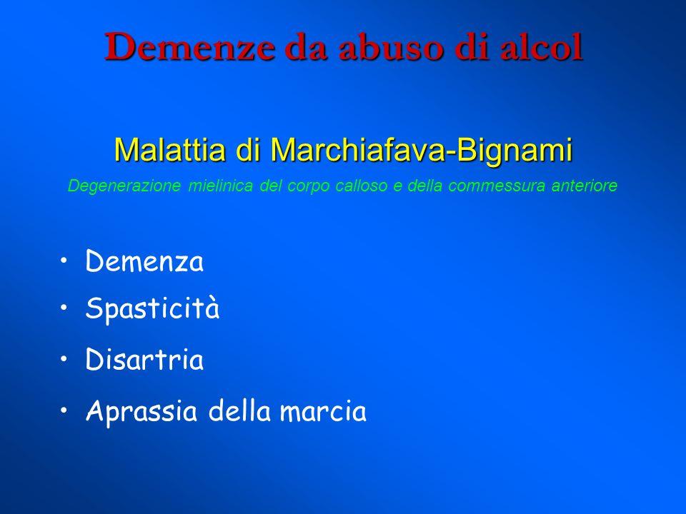Demenze da abuso di alcol Malattia di Marchiafava-Bignami Demenza Spasticità Disartria Aprassia della marcia Degenerazione mielinica del corpo calloso e della commessura anteriore