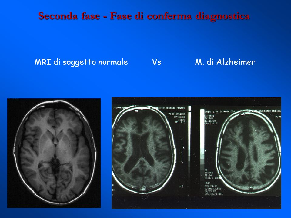Seconda fase - Fase di conferma diagnostica MRI di soggetto normale Vs M. di Alzheimer