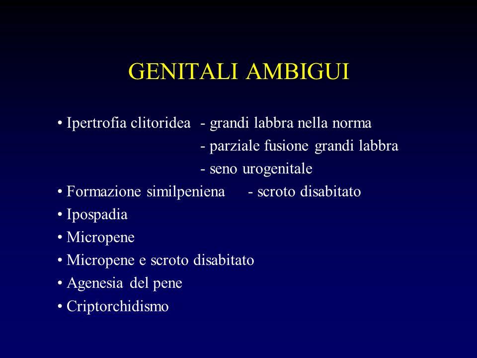 GENITALI AMBIGUI Ipertrofia clitoridea- grandi labbra nella norma - parziale fusione grandi labbra - seno urogenitale Formazione similpeniena- scroto