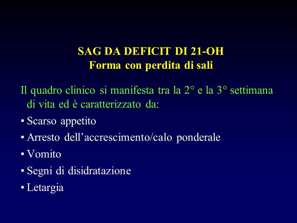 SAG DA DEFICIT DI 21-OH Forma con perdita di sali In pochi giorni il quadro clinico evolverà con comparsa di: Disturbi del ritmo Dispnea Cianosi Acidosi Ipotensione Collasso Decesso