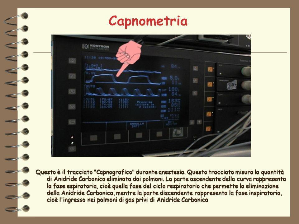 Capnometria Questo è il tracciato Capnografico durante anestesia.