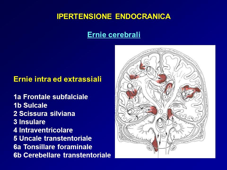 IPERTENSIONE ENDOCRANICA Ernie cerebrali Ernie intra ed extrassiali 1a Frontale subfalciale 1b Sulcale 2 Scissura silviana 3 Insulare 4 Intraventricolare 5 Uncale transtentoriale 6a Tonsillare foraminale 6b Cerebellare transtentoriale