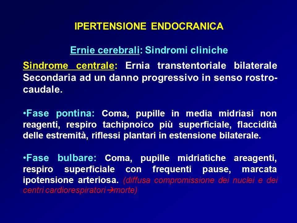 IPERTENSIONE ENDOCRANICA Ernie cerebrali: Sindromi cliniche Sindrome centrale: Ernia transtentoriale bilaterale Secondaria ad un danno progressivo in senso rostro- caudale.