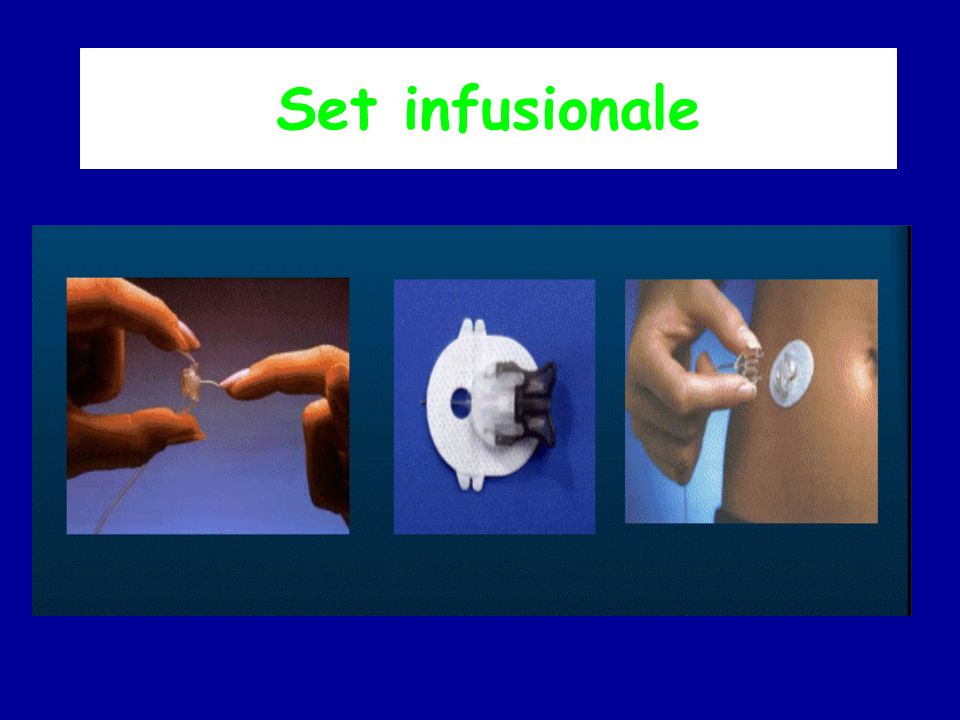 Set infusionale