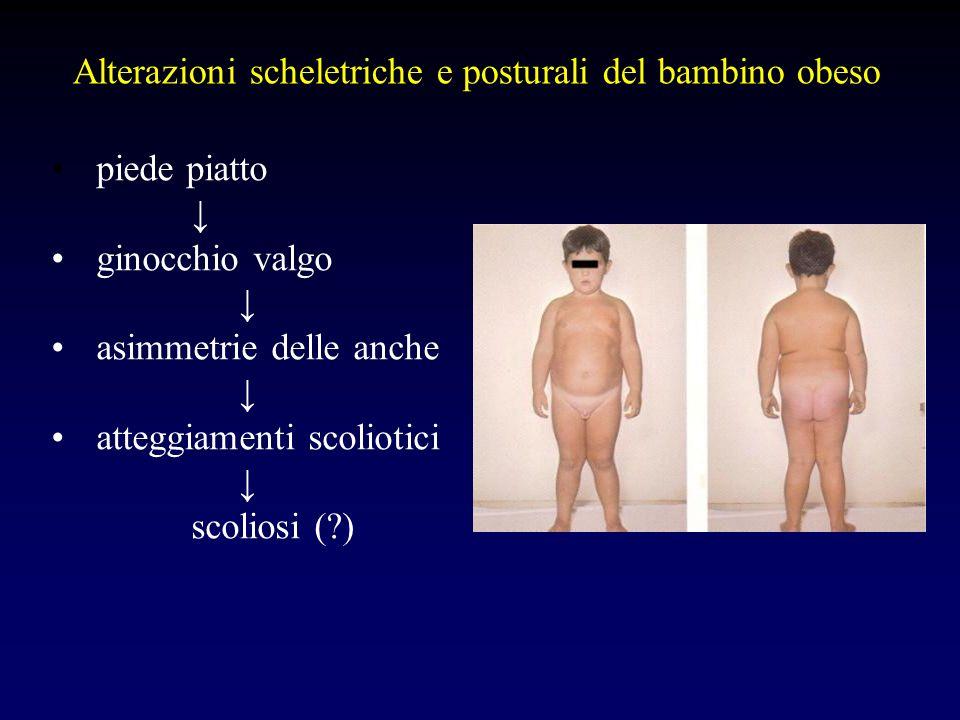 Alterazioni scheletriche e posturali del bambino obeso piede piatto ginocchio valgo asimmetrie delle anche atteggiamenti scoliotici scoliosi (?)