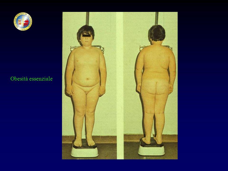 Obesità essenziale