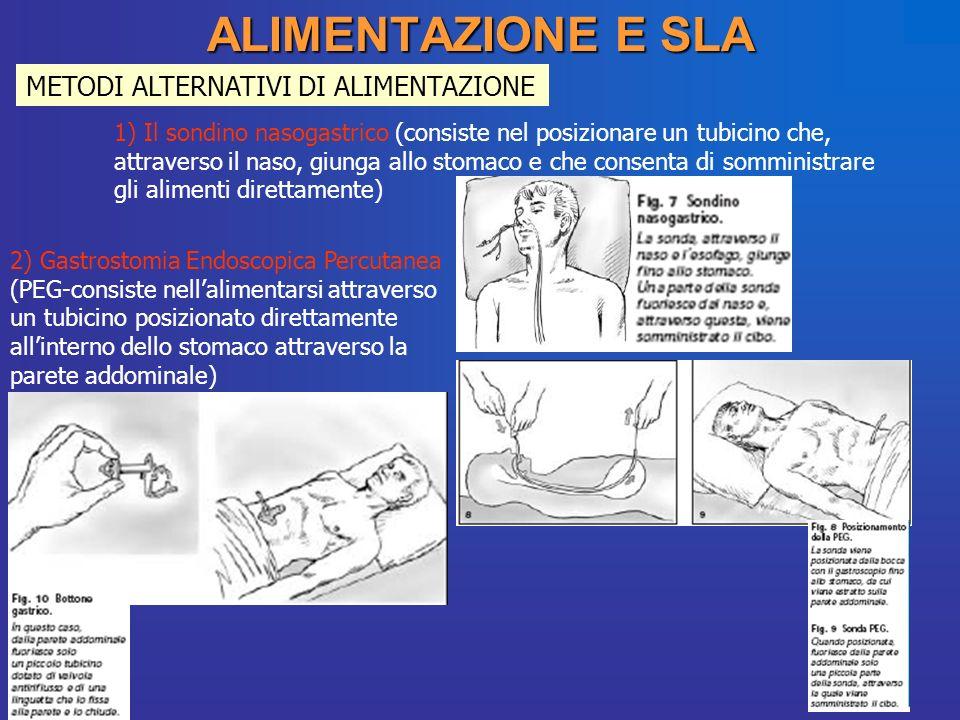 ALIMENTAZIONE E SLA METODI ALTERNATIVI DI ALIMENTAZIONE 1) Il sondino nasogastrico (consiste nel posizionare un tubicino che, attraverso il naso, giun