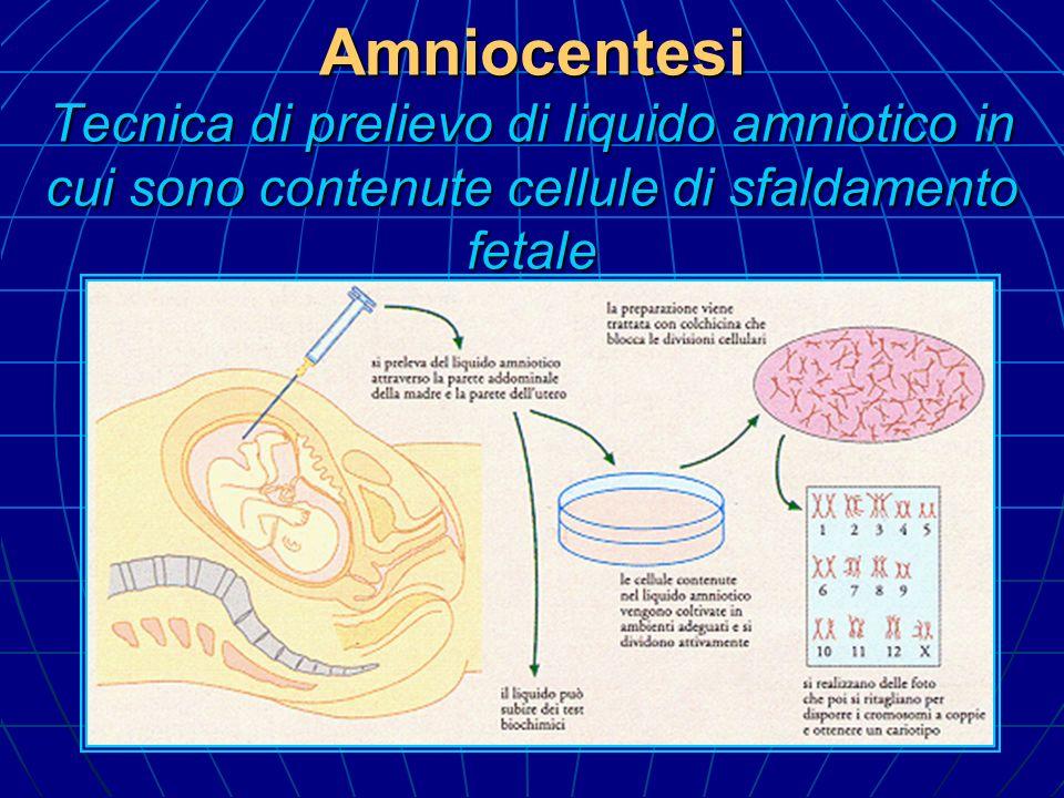 Amniocentesi Tecnica di prelievo di liquido amniotico in cui sono contenute cellule di sfaldamento fetale