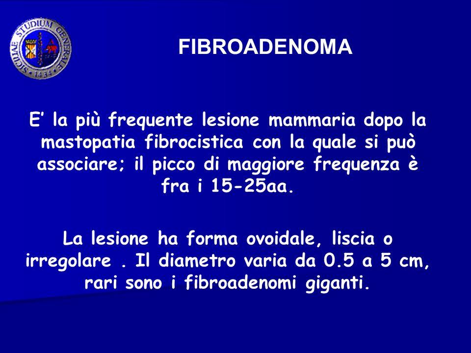 FIBROADENOMA E la più frequente lesione mammaria dopo la mastopatia fibrocistica con la quale si può associare; il picco di maggiore frequenza è fra i