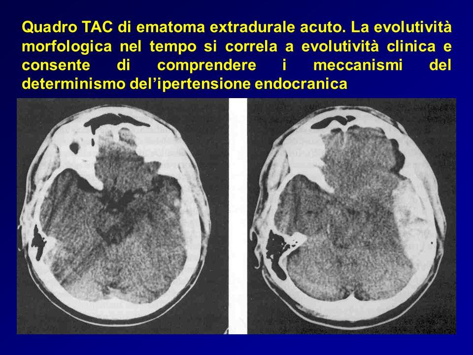 Quadro TAC di ematoma extradurale acuto. La evolutività morfologica nel tempo si correla a evolutività clinica e consente di comprendere i meccanismi