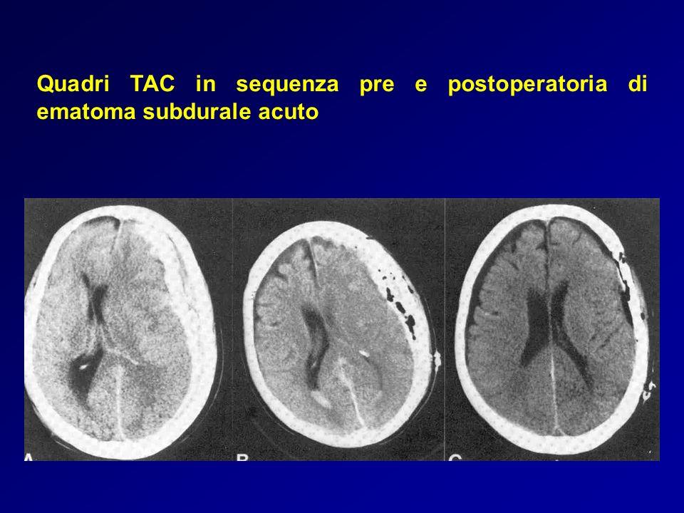 Quadri TAC in sequenza pre e postoperatoria di ematoma subdurale acuto