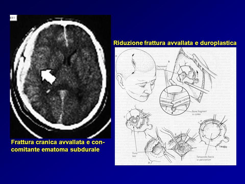 Frattura cranica avvallata e con- comitante ematoma subdurale Riduzione frattura avvallata e duroplastica