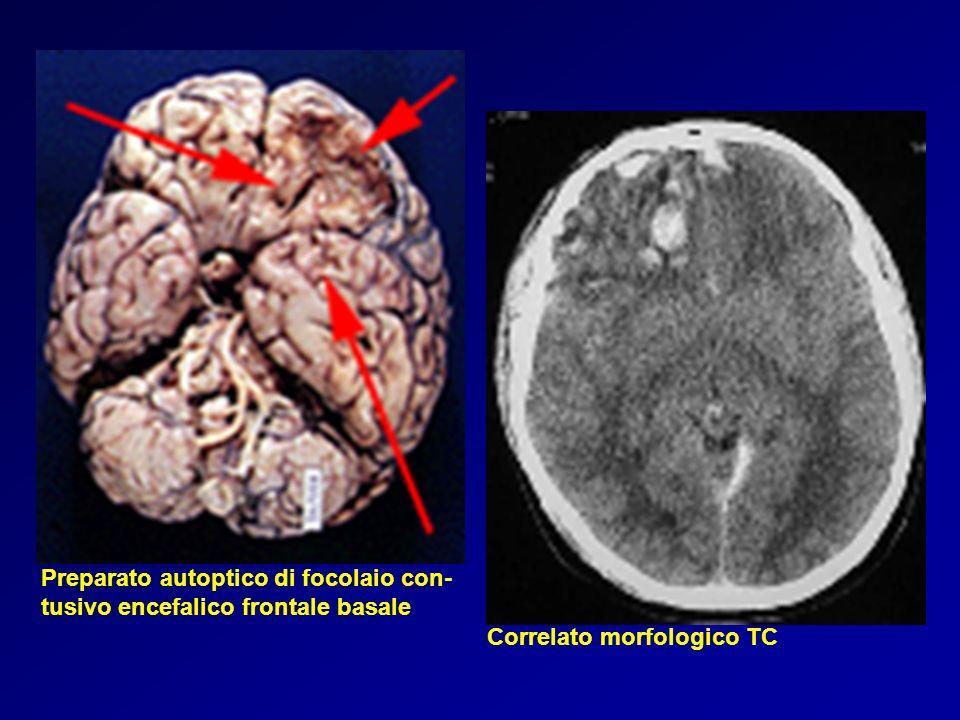 Preparato autoptico di focolaio con- tusivo encefalico frontale basale Correlato morfologico TC