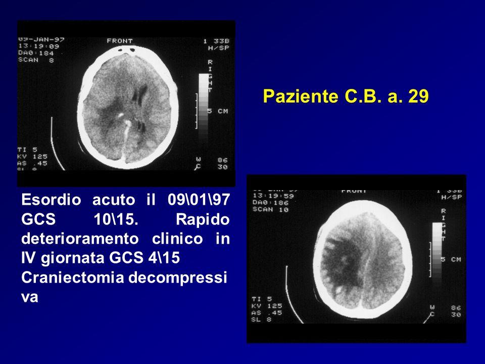 Paziente C.B. a. 29 Esordio acuto il 09\01\97 GCS 10\15. Rapido deterioramento clinico in IV giornata GCS 4\15 Craniectomia decompressi va