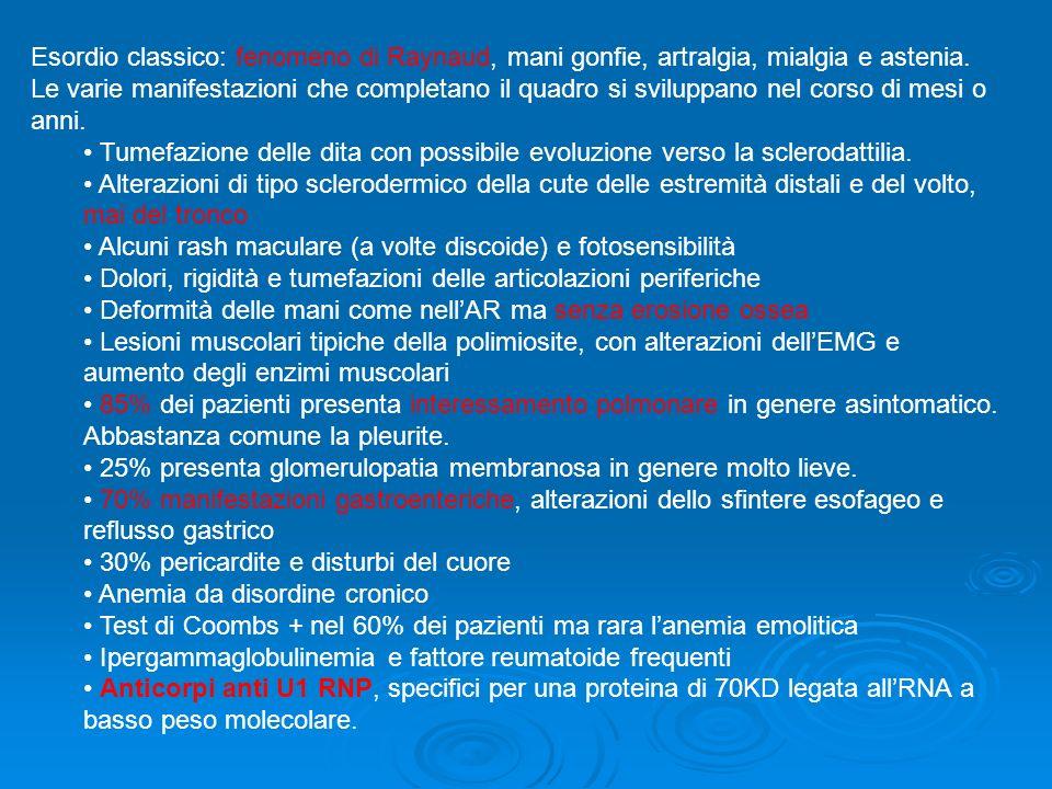 Esordio classico: fenomeno di Raynaud, mani gonfie, artralgia, mialgia e astenia. Le varie manifestazioni che completano il quadro si sviluppano nel c