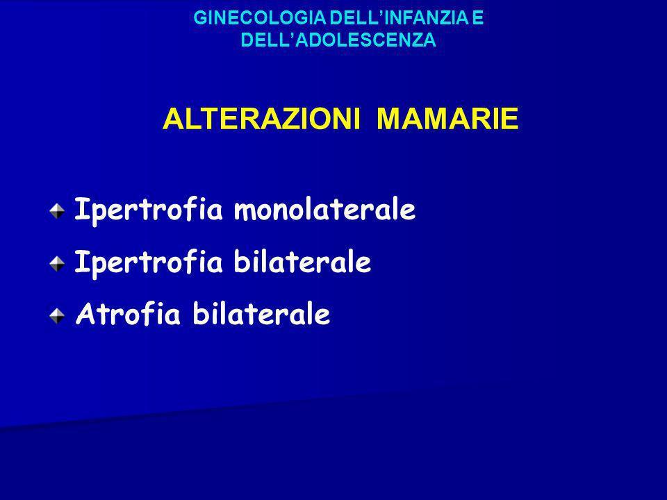 GINECOLOGIA DELLINFANZIA E DELLADOLESCENZA ALTERAZIONI MAMARIE Ipertrofia monolaterale Ipertrofia bilaterale Atrofia bilaterale