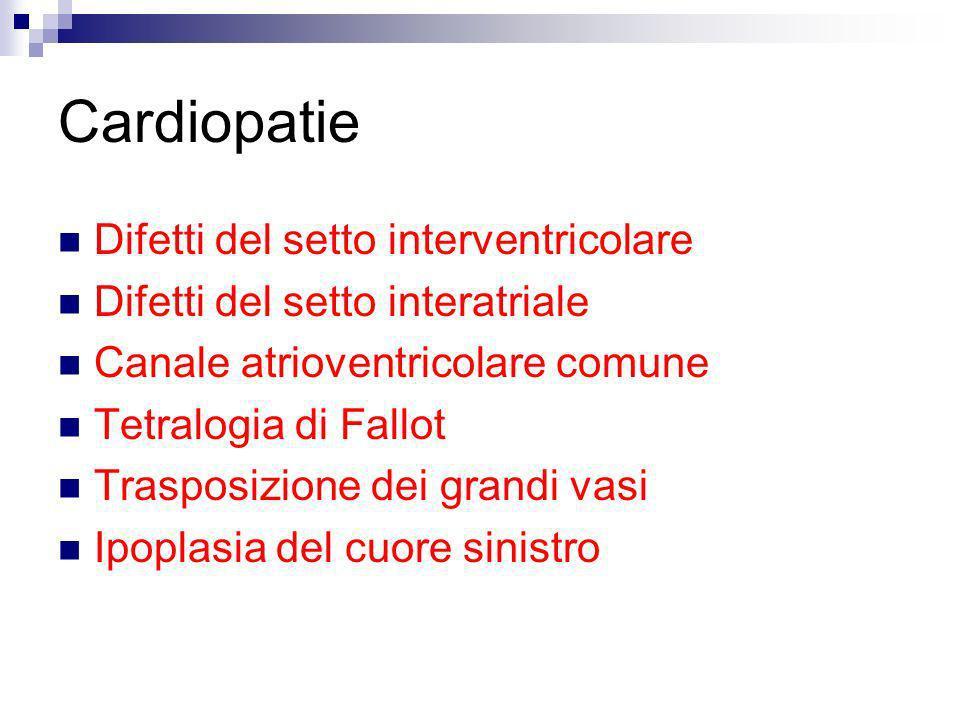 Cardiopatie Difetti del setto interventricolare Difetti del setto interatriale Canale atrioventricolare comune Tetralogia di Fallot Trasposizione dei