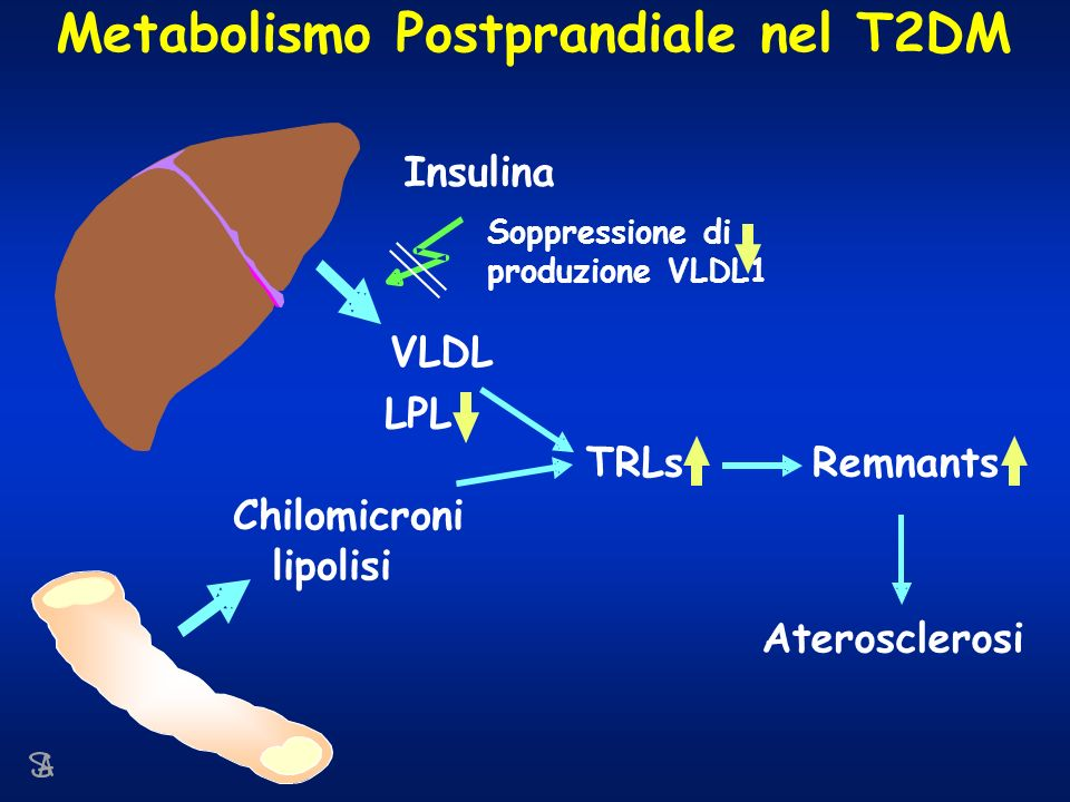 Chilomicroni lipolisi VLDL TRLsRemnants Aterosclerosi Insulina Soppressione di produzione VLDL1 Metabolismo Postprandiale nel T2DM LPL