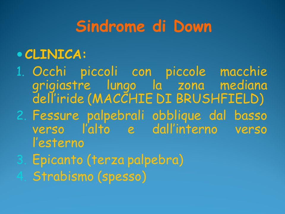 Sindrome di Down CLINICA: 1. Occhi piccoli con piccole macchie grigiastre lungo la zona mediana delliride (MACCHIE DI BRUSHFIELD) 2. Fessure palpebral