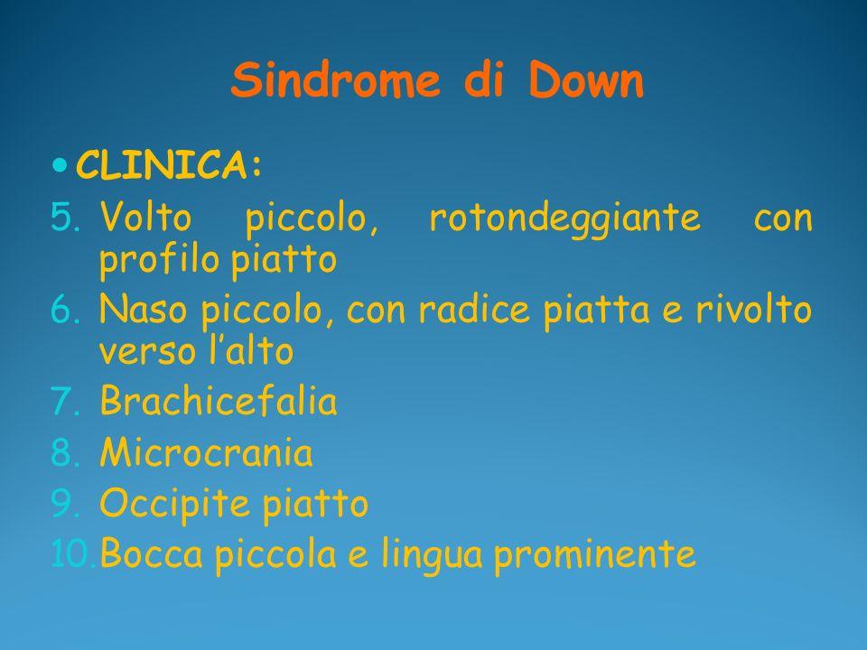 Sindrome di Down CLINICA: 5. Volto piccolo, rotondeggiante con profilo piatto 6. Naso piccolo, con radice piatta e rivolto verso lalto 7. Brachicefali