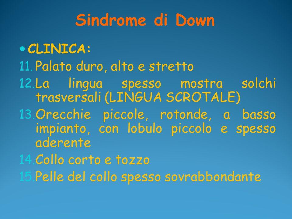 Sindrome di Down CLINICA: 11. Palato duro, alto e stretto 12. La lingua spesso mostra solchi trasversali (LINGUA SCROTALE) 13. Orecchie piccole, roton