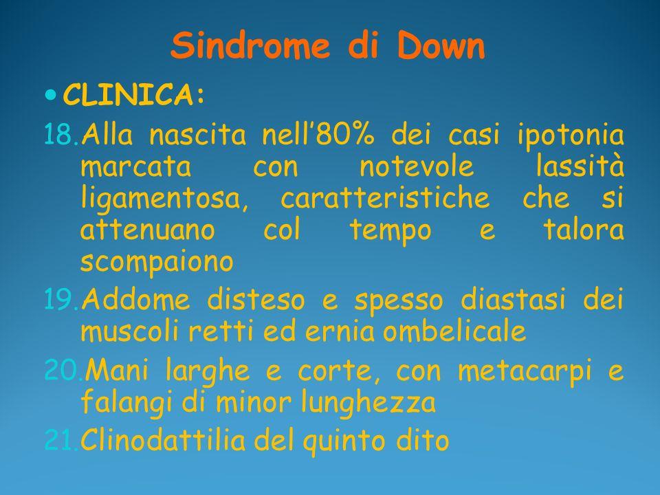 Sindrome di Down CLINICA: 18. Alla nascita nell80% dei casi ipotonia marcata con notevole lassità ligamentosa, caratteristiche che si attenuano col te