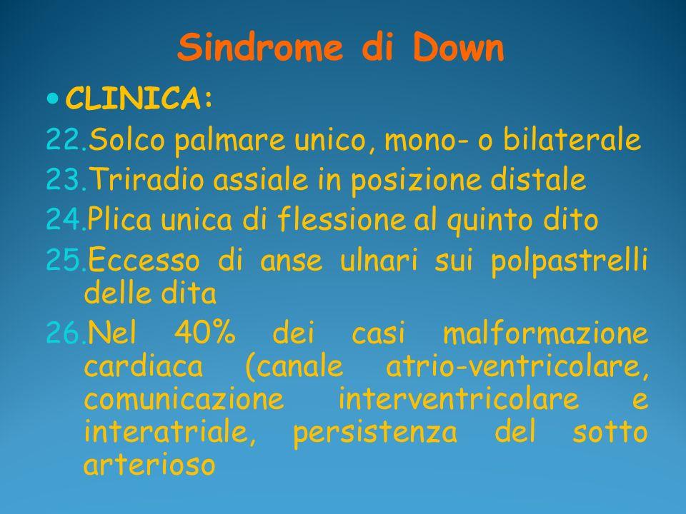 Sindrome di Down CLINICA: 22. Solco palmare unico, mono- o bilaterale 23. Triradio assiale in posizione distale 24. Plica unica di flessione al quinto