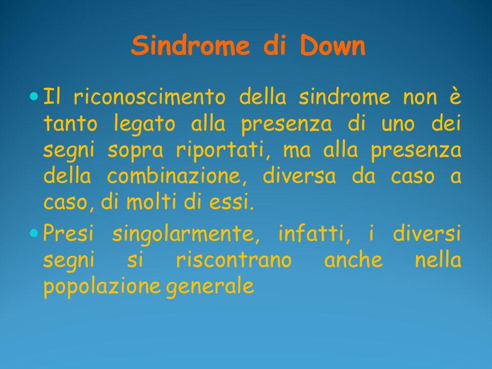 Sindrome di Down Il riconoscimento della sindrome non è tanto legato alla presenza di uno dei segni sopra riportati, ma alla presenza della combinazio