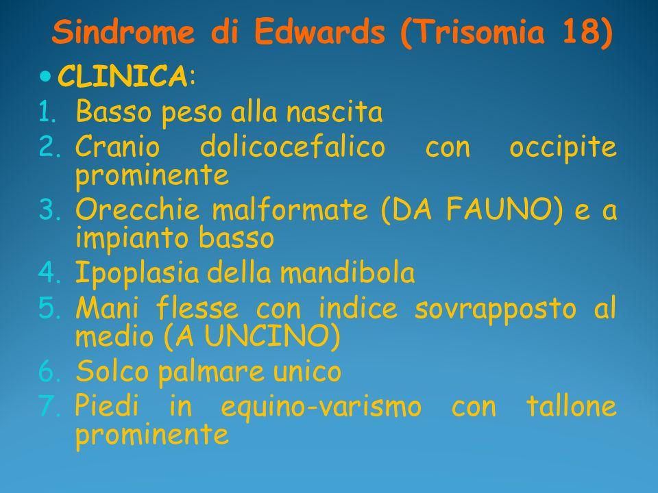 Sindrome di Edwards (Trisomia 18) CLINICA: 1. Basso peso alla nascita 2. Cranio dolicocefalico con occipite prominente 3. Orecchie malformate (DA FAUN