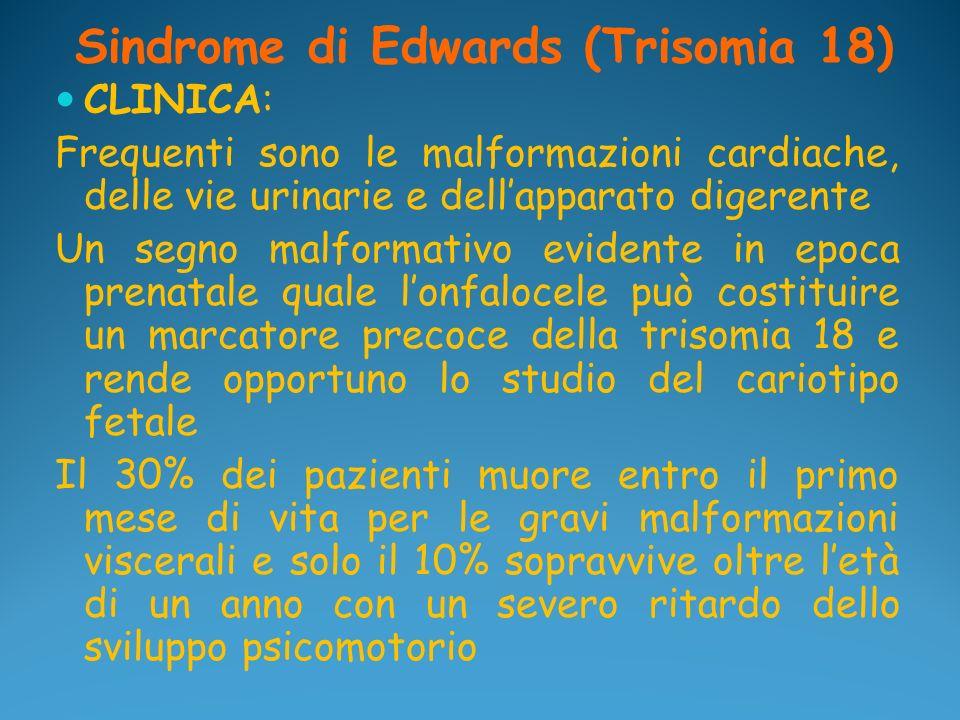 Sindrome di Edwards (Trisomia 18) CLINICA: Frequenti sono le malformazioni cardiache, delle vie urinarie e dellapparato digerente Un segno malformativ