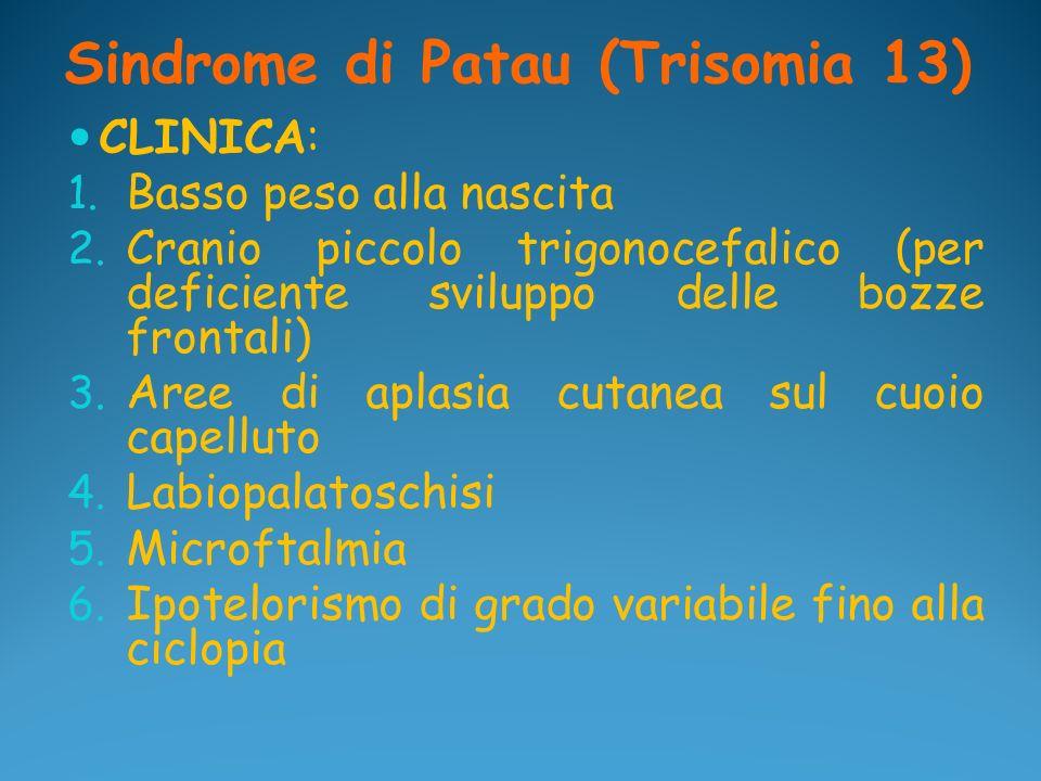Sindrome di Patau (Trisomia 13) CLINICA: 1. Basso peso alla nascita 2. Cranio piccolo trigonocefalico (per deficiente sviluppo delle bozze frontali) 3
